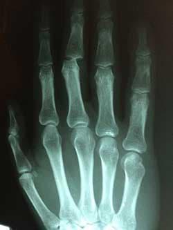 artritis y estres